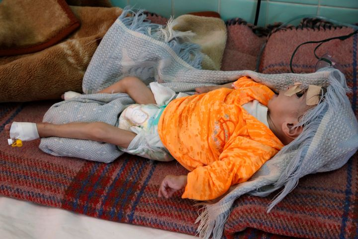 A malnourished infant at a hospital in Sanaa, Yemen, in the fall of 2019. Mass hunger in the country has reduced people's cap